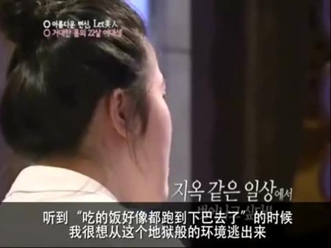 韩国整容 丑女变美女